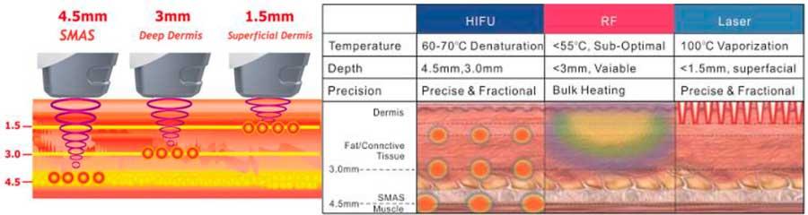 Profundidad del HIFU System