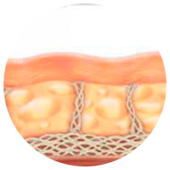 Piel antes del tratamiento - Lift Ten - HIFU System