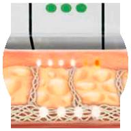 Ultrasonido bajo la piel - Lift Ten - HIFU System