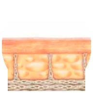 Generación de nuevo colágeno en la piel - Lift Ten - HIFU System