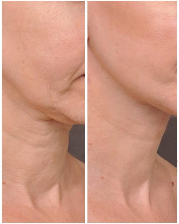 Antes y después cuello Hifu System