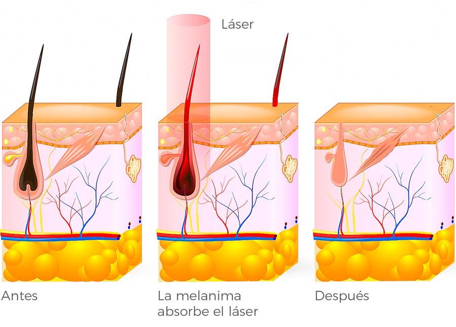 Esquema láser diodo